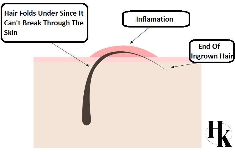 How To Avoid Ingrown Hairs